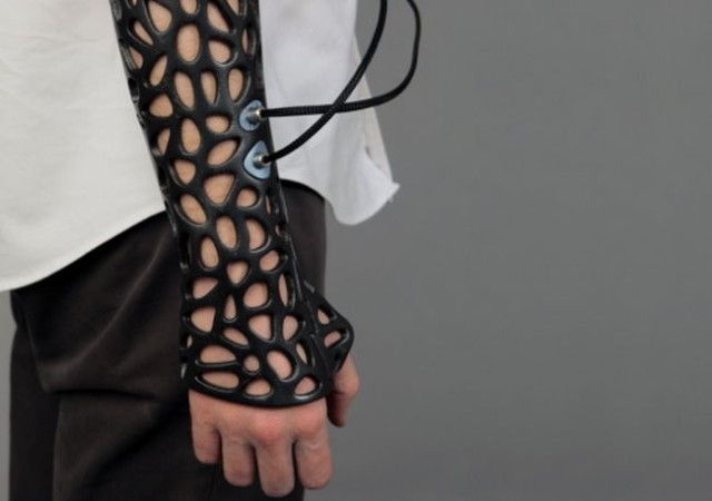 3D Printed Cast With Ultrasonic Vibrations Helps Speed Up Recovery