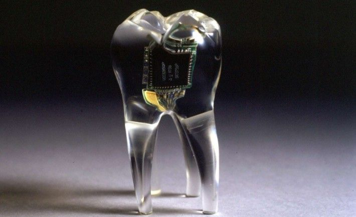 wearable implants