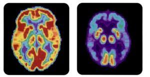 PET_scan-normal_brain-alzheimers_disease_brain-banner